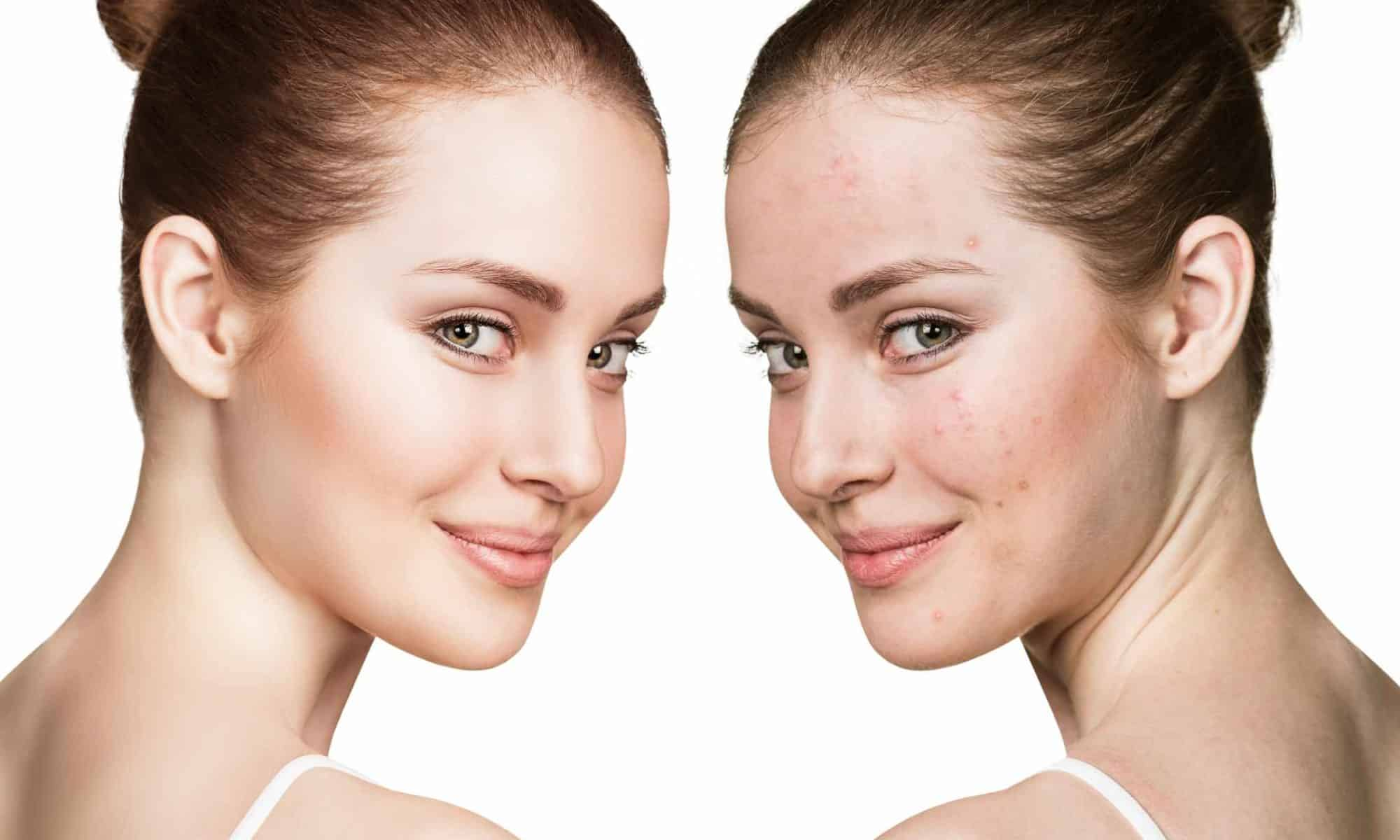 Tampa-Bay-USF-Laser-Acne-Treatment-Temple-Terrace