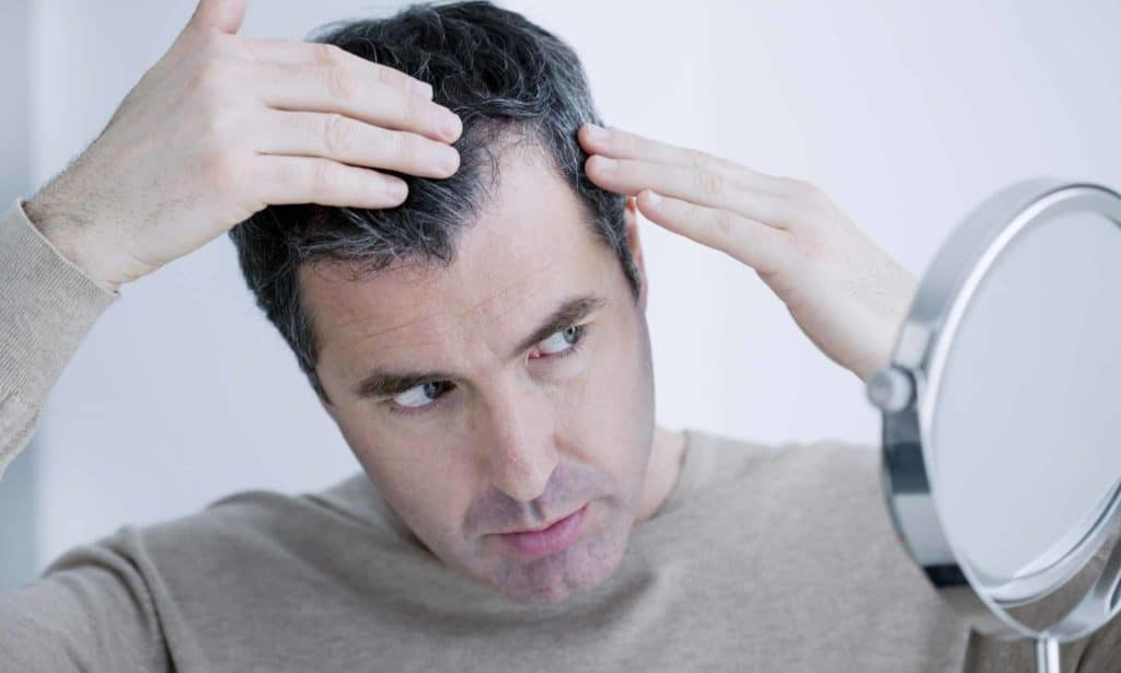 PRP Platelet Rich Plasma or Stem Cell Therapy for Hair Loss