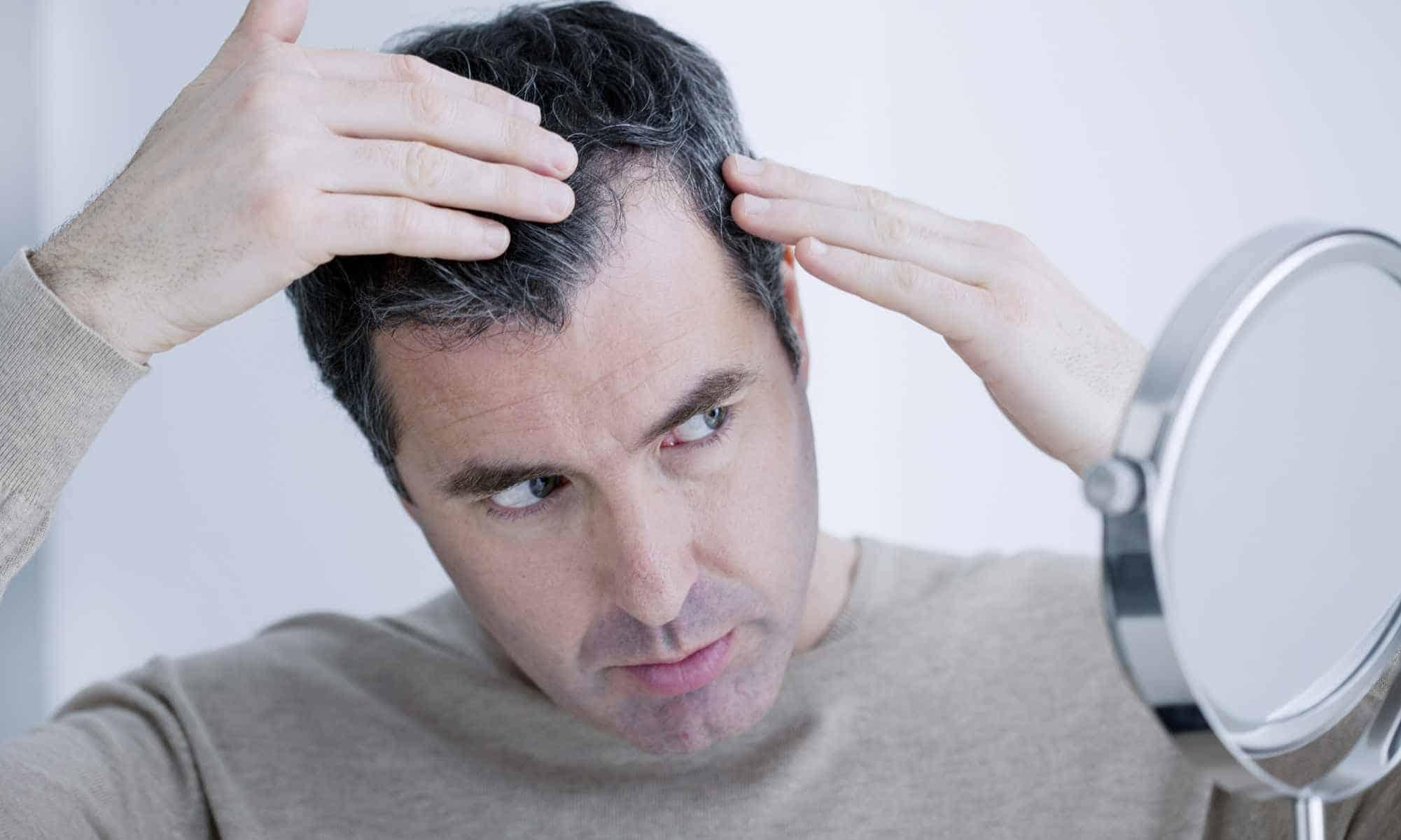 Propecia success hair loss