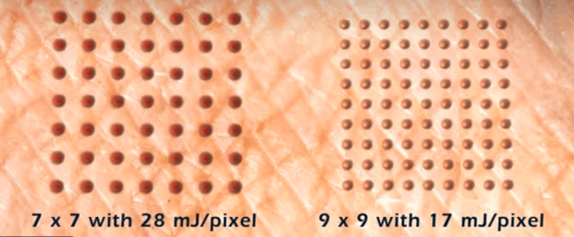 Louisville Laser Pixel Grid Comparison and Energy