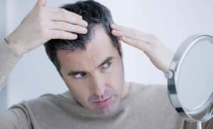 Hair Loss Therapy Advances with Platelet-rich Plasma and Micro-Needling